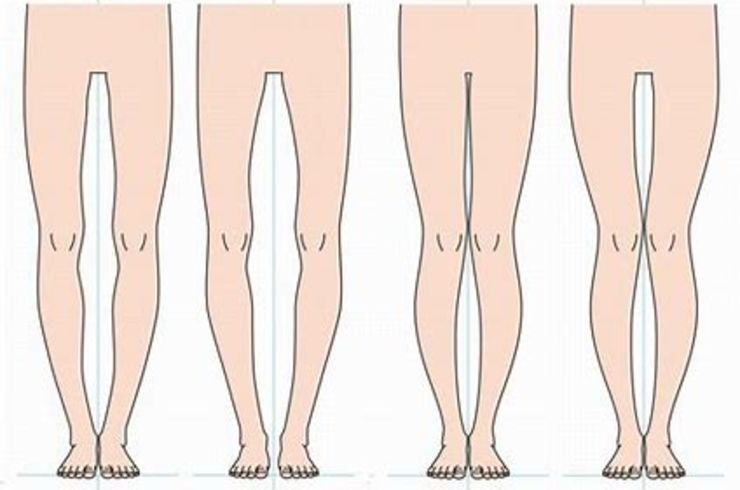 脚 デメリット o O脚を改善するためにはインソールをオーダーメイドすると良いかも!?